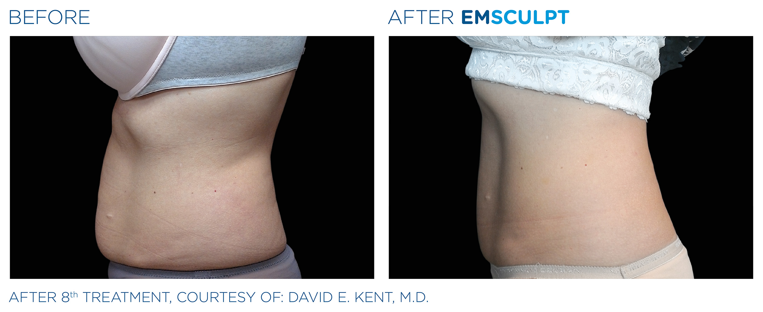 EMSCULPT Before & After Photos | Abdomen 1