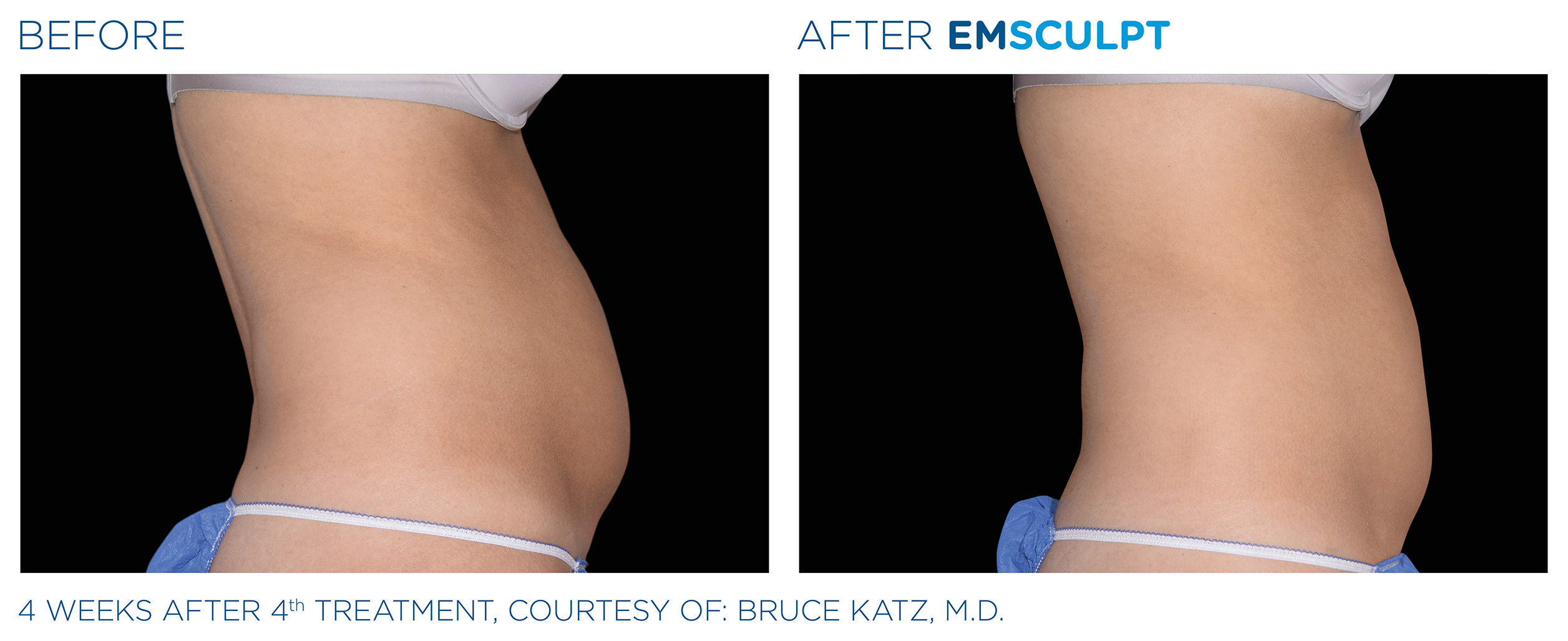 EMSCULPT Before & After Photos | Abdomen 2