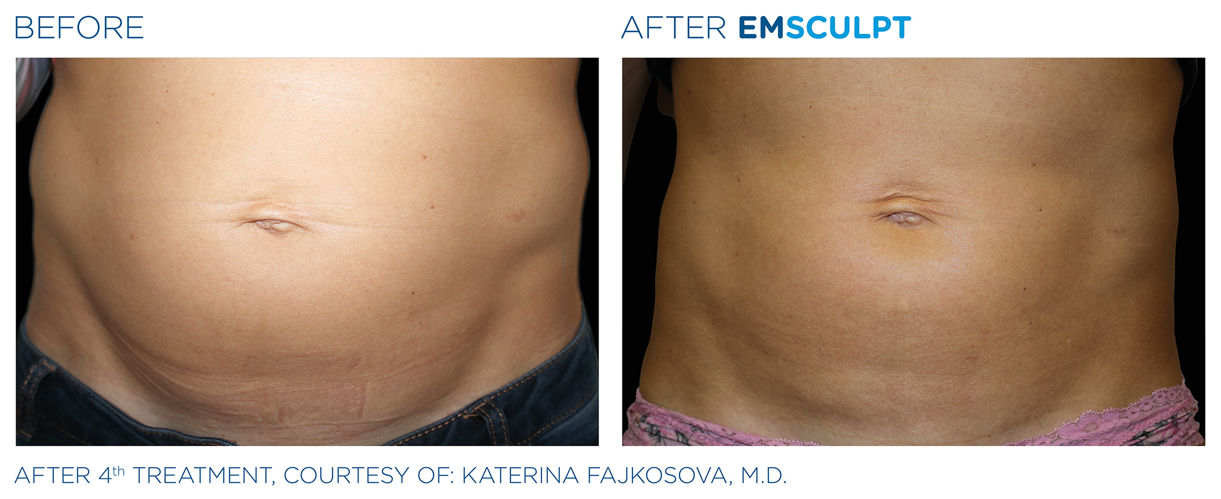 EMSCULPT Before & After Photos | Abdomen 4
