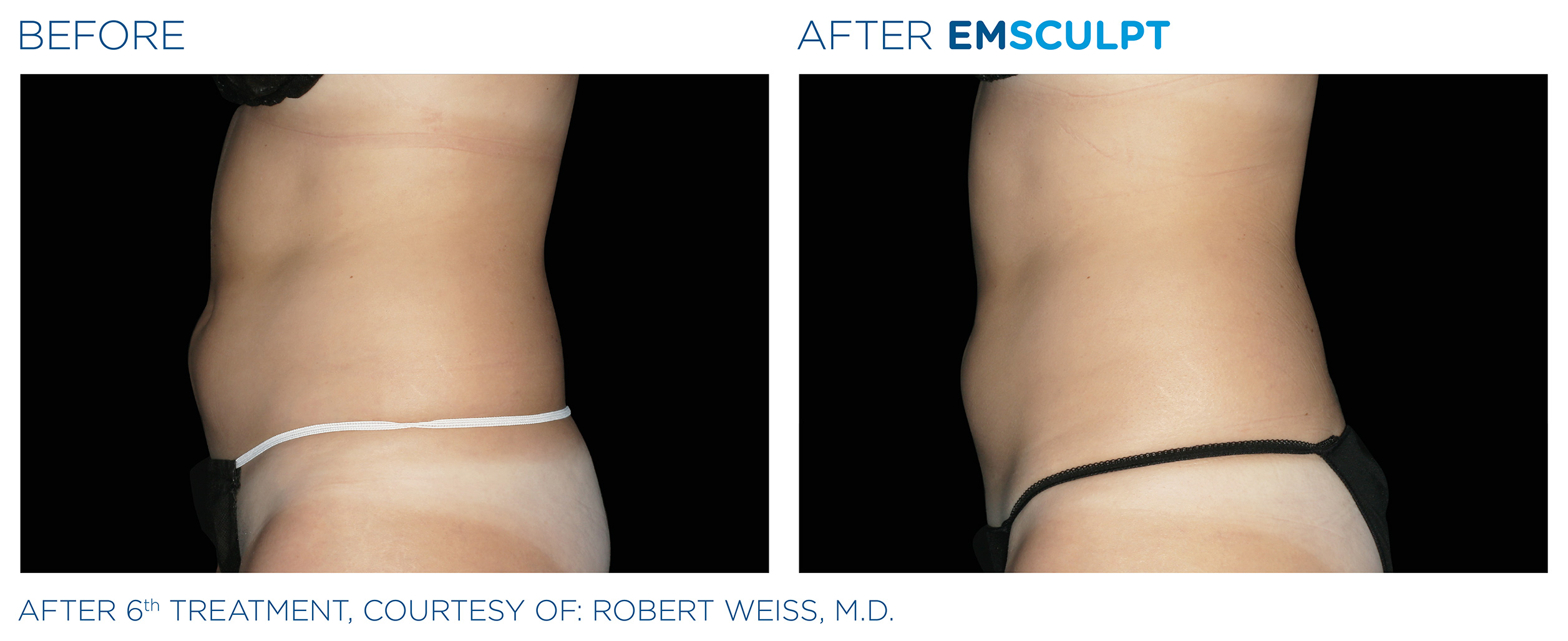 EMSCULPT Before & After Photos | Abdomen 5