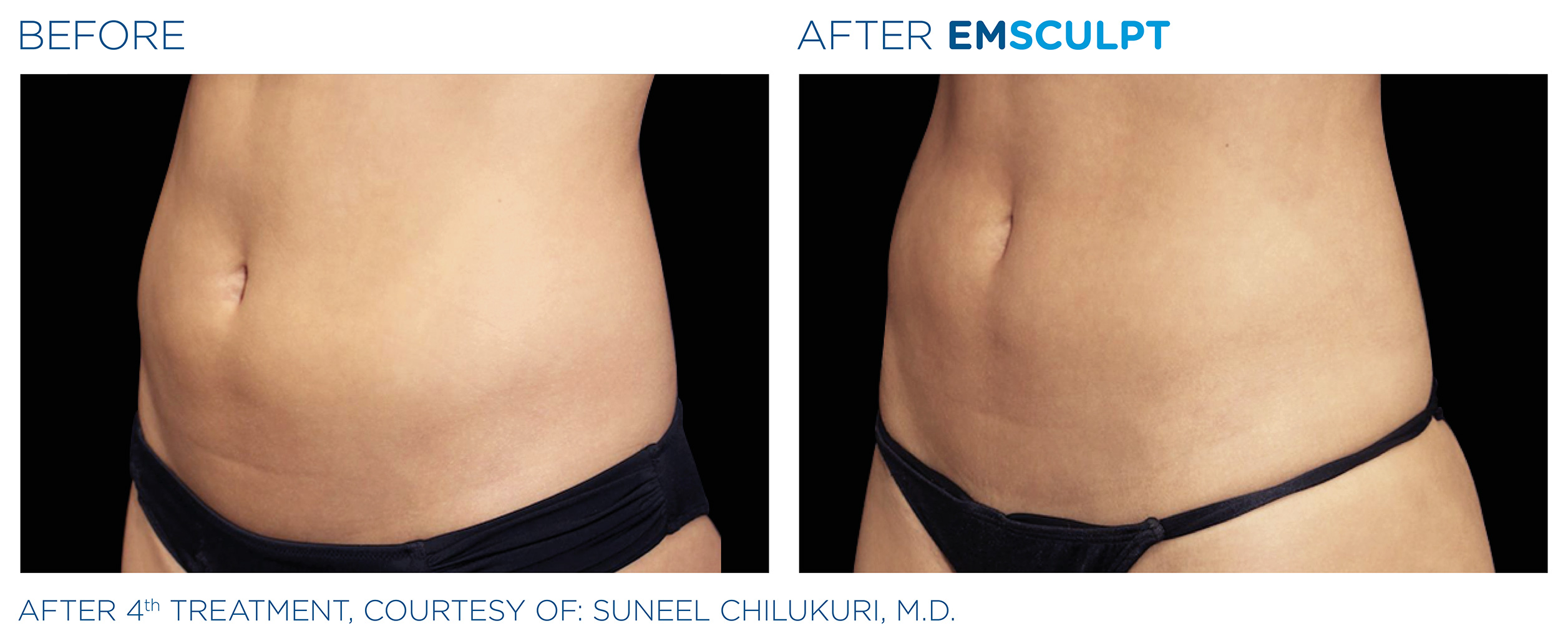 EMSCULPT Before & After Photos | Abdomen 6