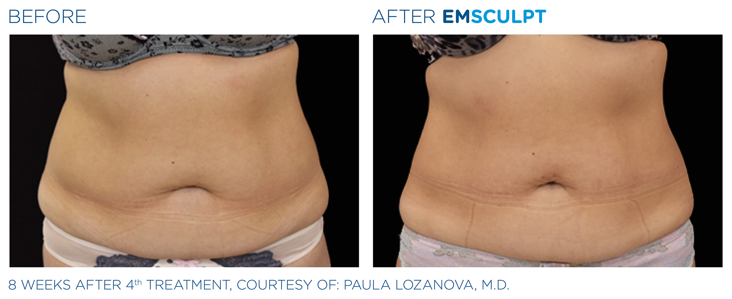 EMSCULPT Before & After Photos | Abdomen 10