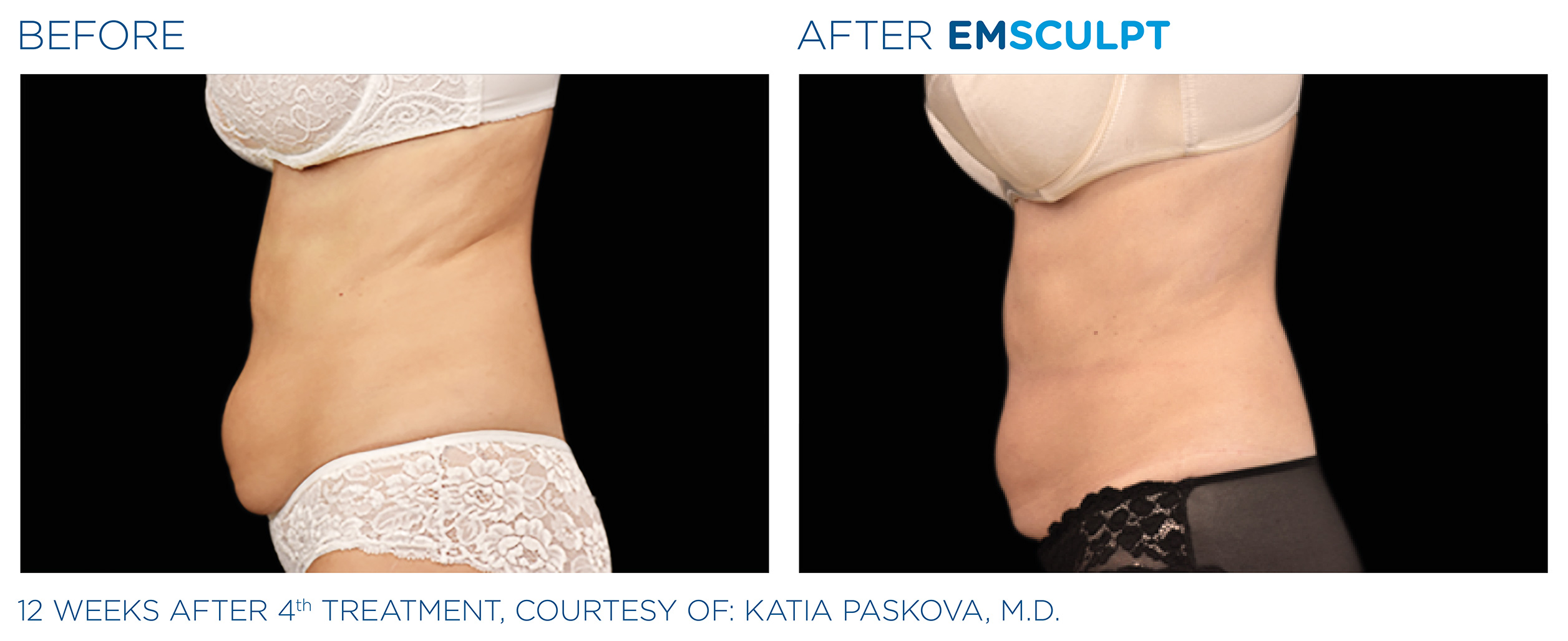 EMSCULPT Before & After Photos | Abdomen 12