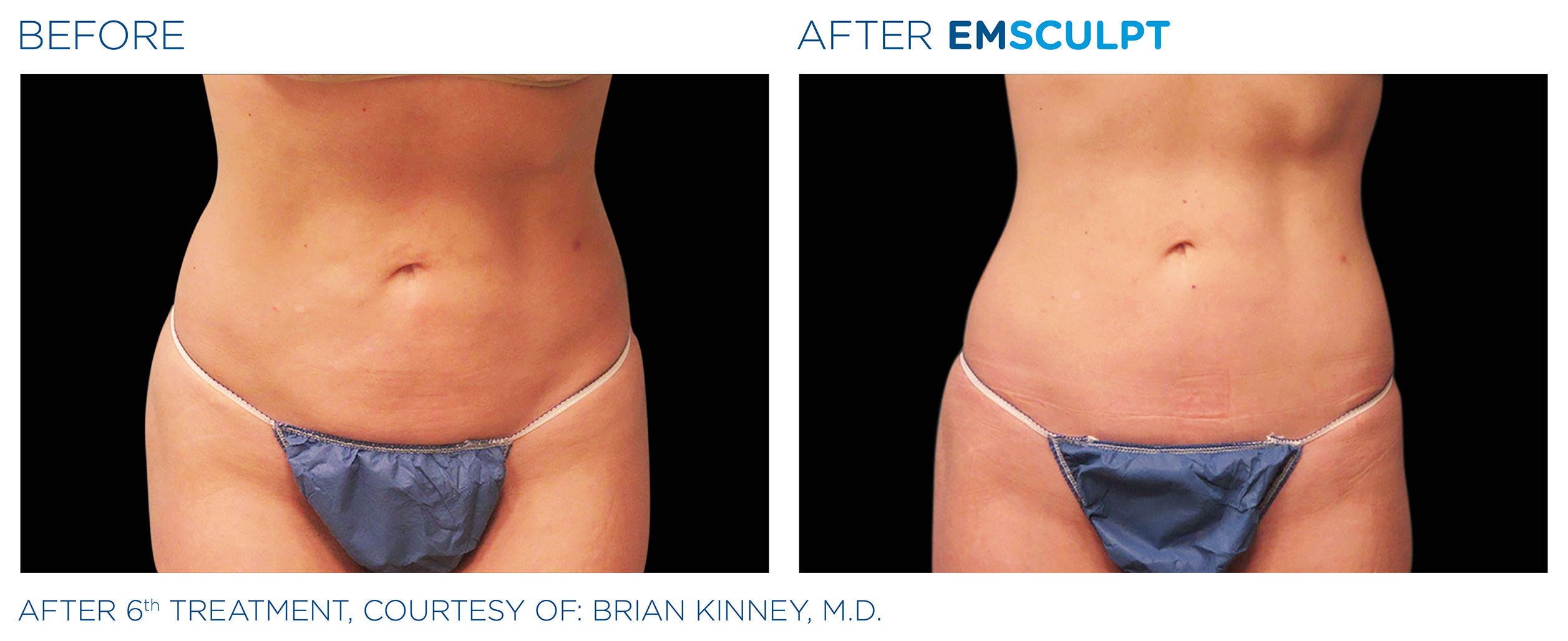 EMSCULPT Before & After Photos | Abdomen 13