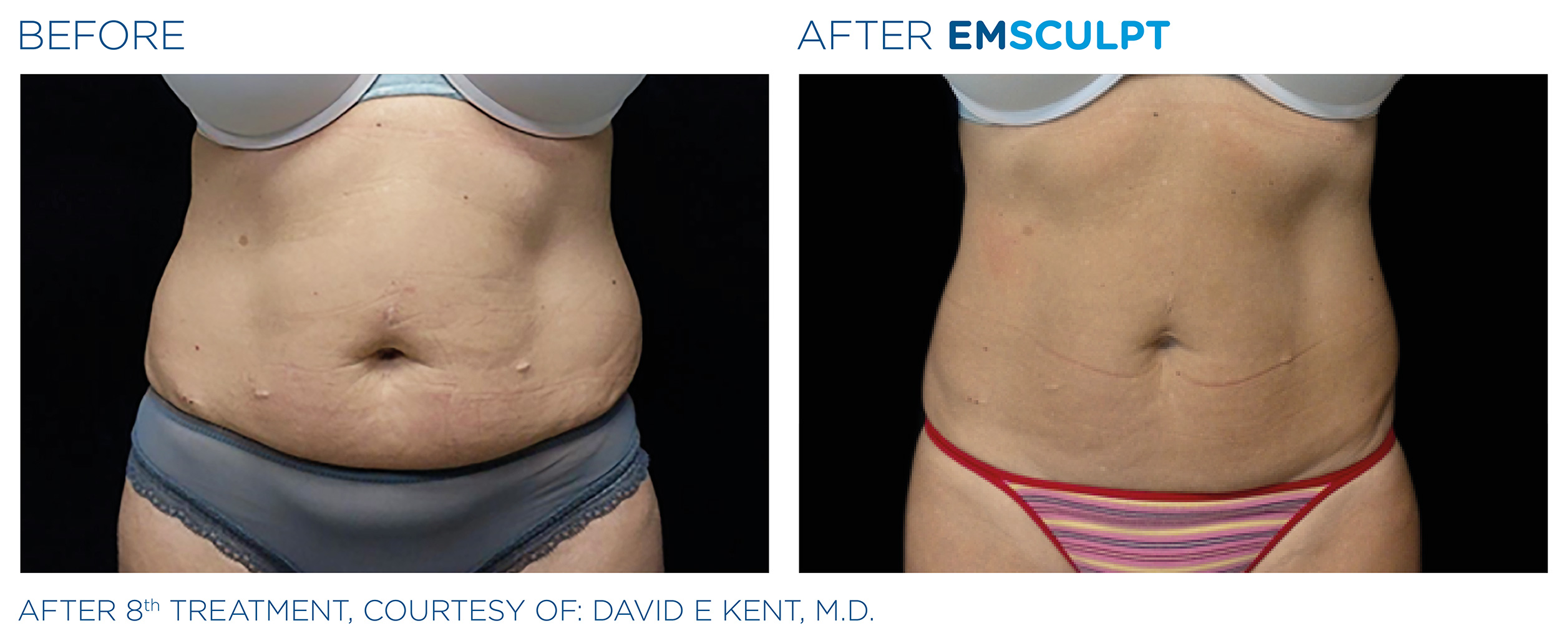 EMSCULPT Before & After Photos | Abdomen 14