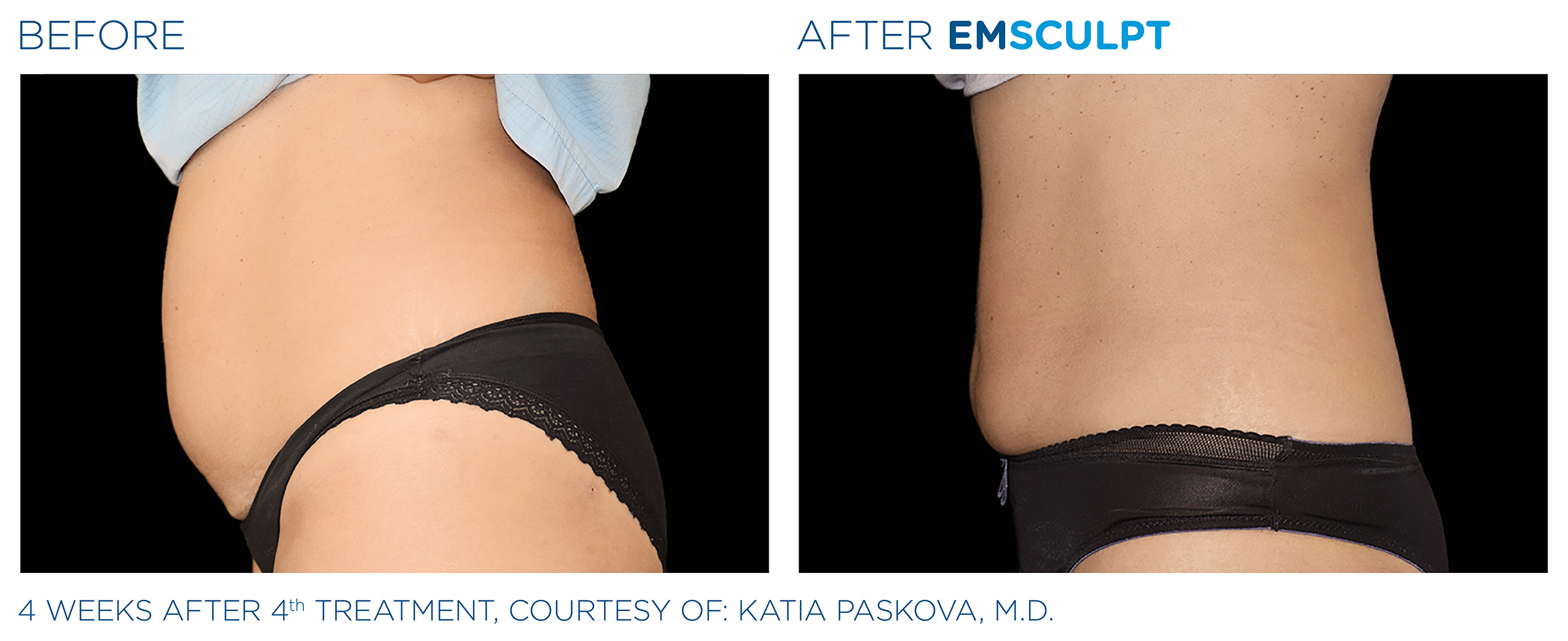 EMSCULPT Before & After Photos | Abdomen 15