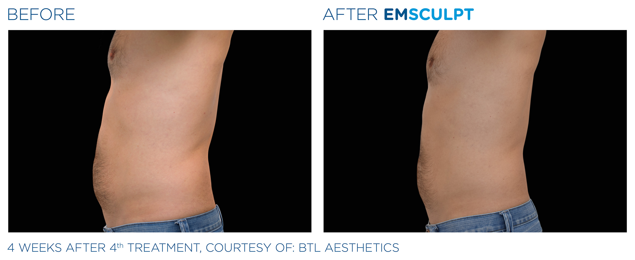 EMSCULPT Before & After Photos | Male Abdomen 1