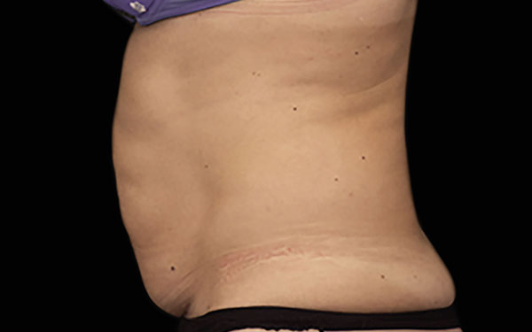 EMSCULPT Abdomen Treatment Female Abs Before