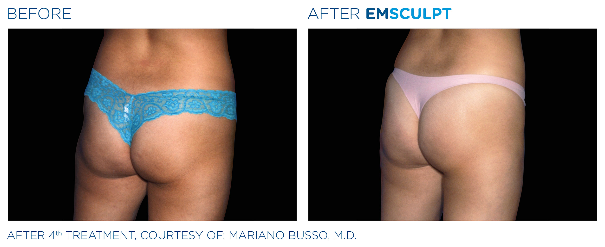 EMSCULPT Before & After Photos | Female Buttocks 3