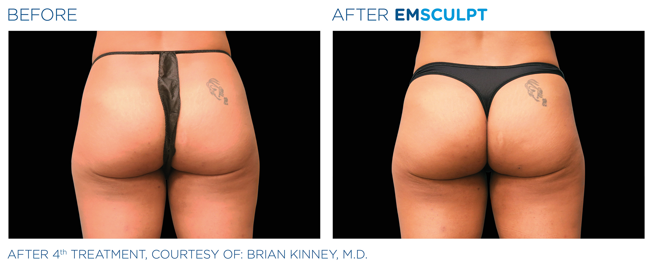 EMSCULPT Before & After Photos | Female Buttocks 4