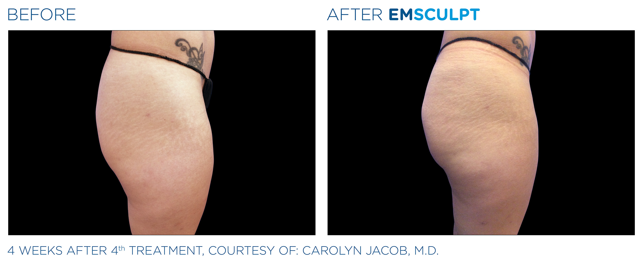 EMSCULPT Before & After Photos | Female Buttocks 7