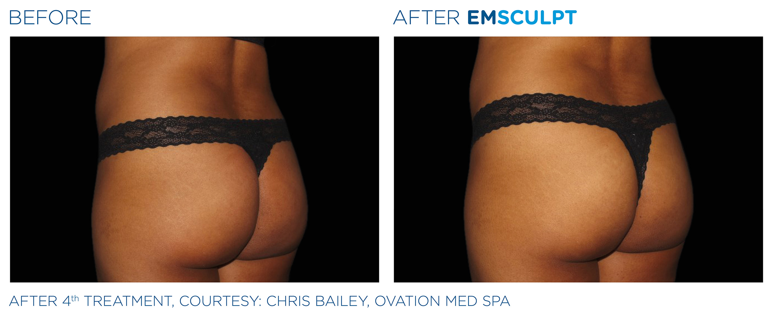 EMSCULPT Before & After Photos | Female Buttocks 11