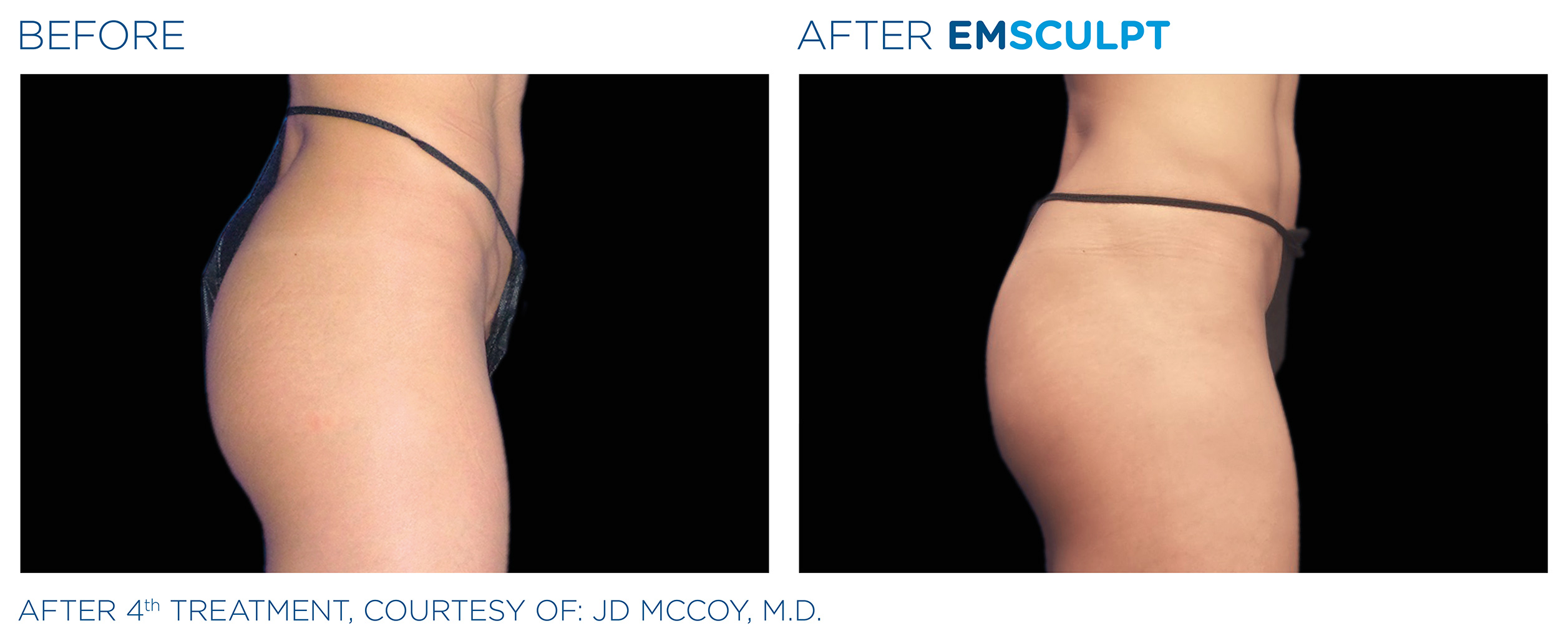 EMSCULPT Before & After Photos | Female Buttocks 12