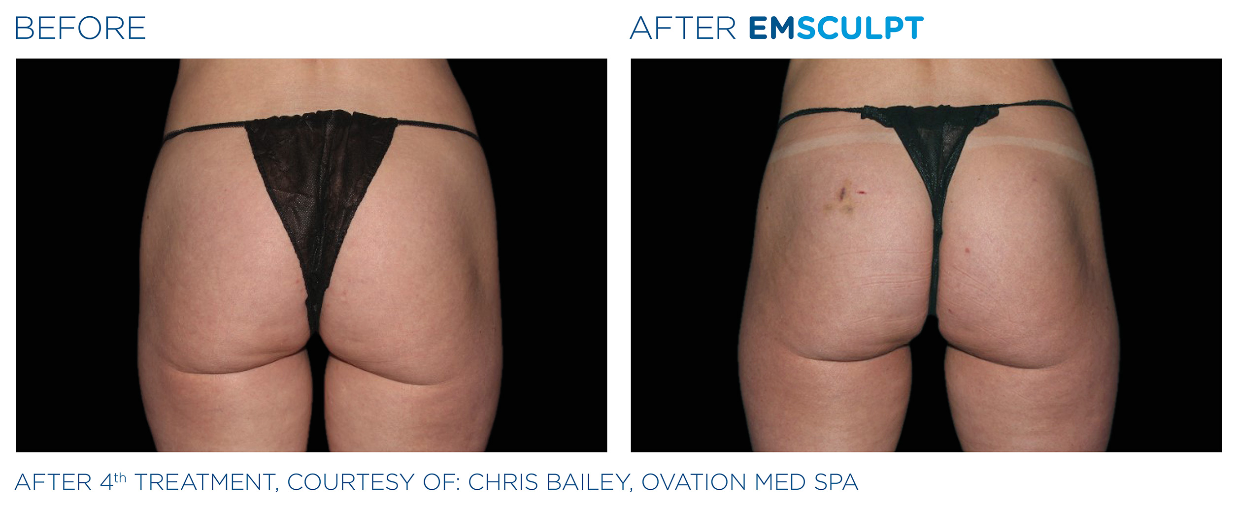 EMSCULPT Before & After Photos | Female Buttocks 14
